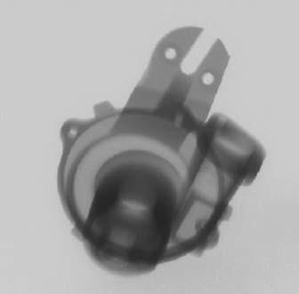 2D-рентген-снимок